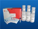 尿中碘的砷铈催化分光光度法配套试剂盒