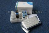 人泛素结合酶(E2/UBCE)ELISA试剂盒Kit价格|代测