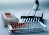 TAb试剂盒,人甲状腺抗体ELISA试剂盒厂家