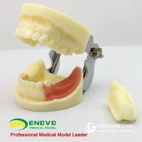 ENOVO颐诺 口腔种植模型齿科外科学教学模型牙颌牙医种植执业考