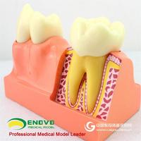 ENOVO颐诺牙体分解模型牙齿解剖模型口腔科教学牙体解剖形态模型