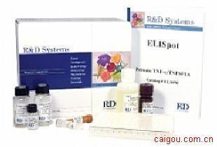 小鼠白细胞分化抗原30Elisa试剂盒,CD30试剂盒