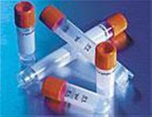 生长停滞特异性蛋白8抗体