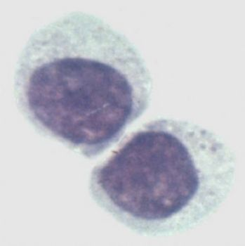 EB病毒转化的人B淋巴细胞,KMY0927