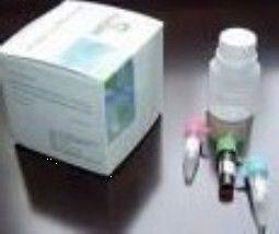 大鼠肾上腺髓质素(ADM)ELISA试剂盒