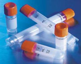 FHIT抗体,抗脆性组氨酸三联体抗体