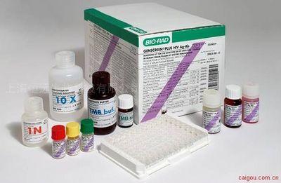 人β淀粉样蛋白1-42 ELISA试剂盒