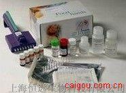 人凝血酶原ELISA试剂盒