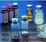 人血管性血友病因子(VWF)ELISA试剂盒