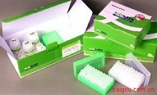 人IL-2sRα/CD25检测Elisa试剂盒
