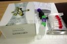 单细胞ELISA试剂盒新进展