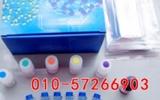 人绿脓杆菌外毒素AELISA试剂盒价格/PEA ELISA Kit说明书
