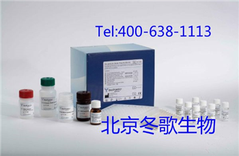 Human着丝粒蛋白B,人(CENP-B)elisa试剂盒