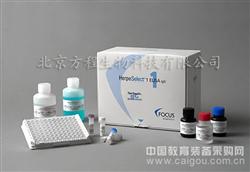 北京sCKR人可溶性细胞因子受体ELISA试剂盒代测